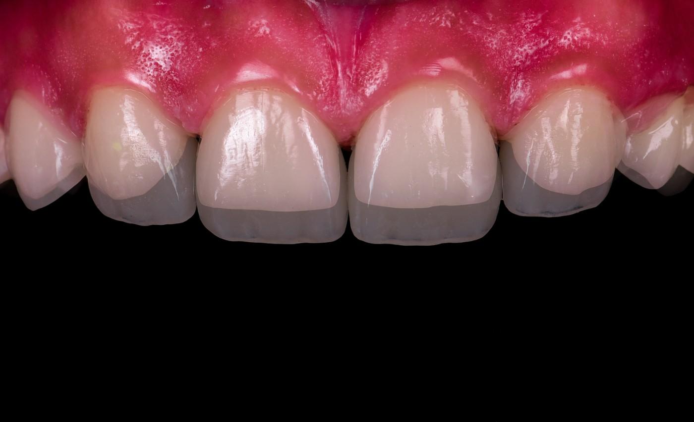 snap on smile, fatete dentare pret, fatete dentare, fatete dentare provizorii, pret fatete dentare